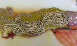 ascaris parasite