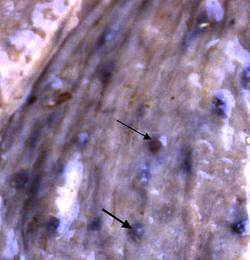 larves de cyathostomes