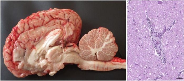 lésions macroscopiques et histologiques observées sur l'encéphale d'un cas confirmé d'infection à virus West Nile.